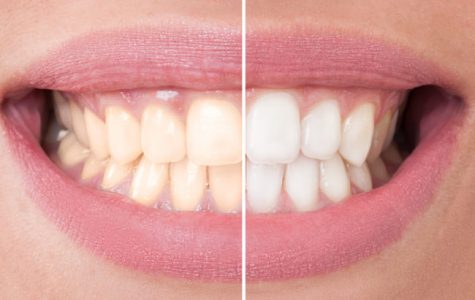 Want that smile white? Ask your dentist first